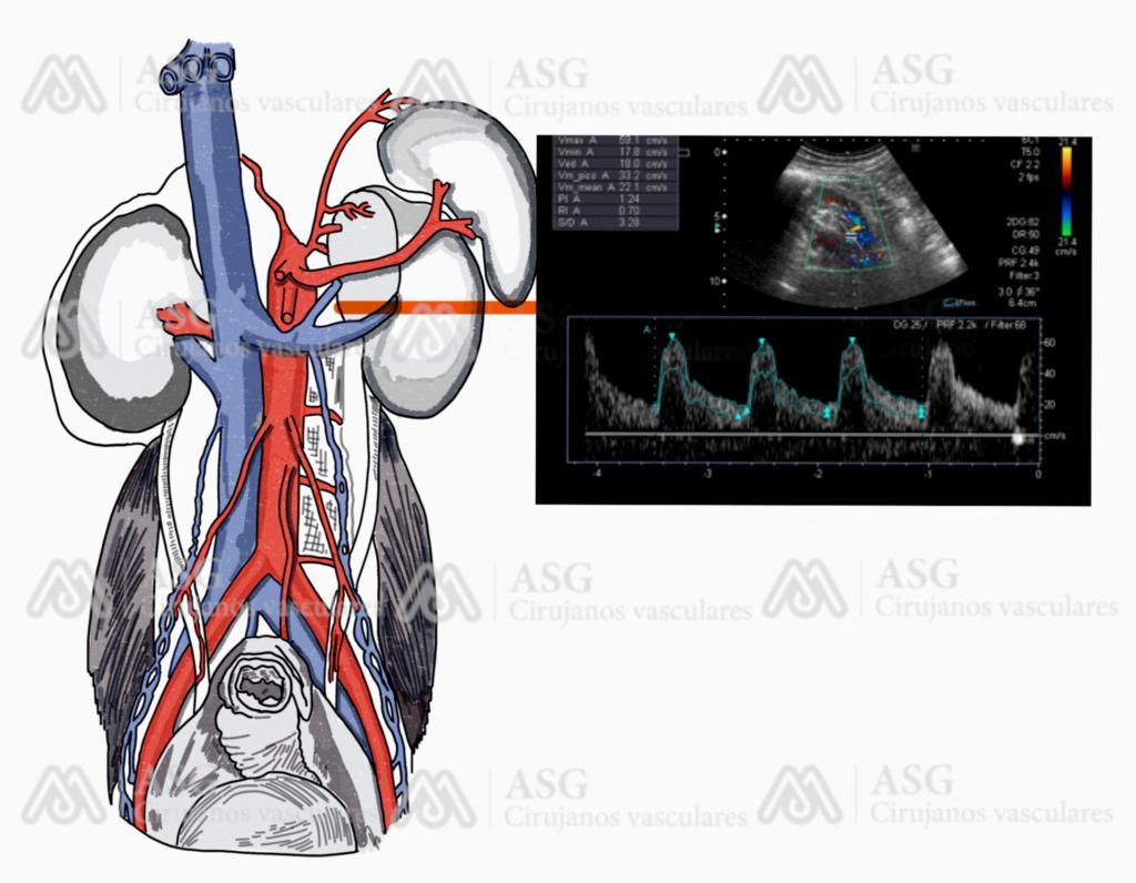 asgcirujanovascular-cirujanos-vasculares-las-palmas-eco-doppler-aorta-ecografia-venosa