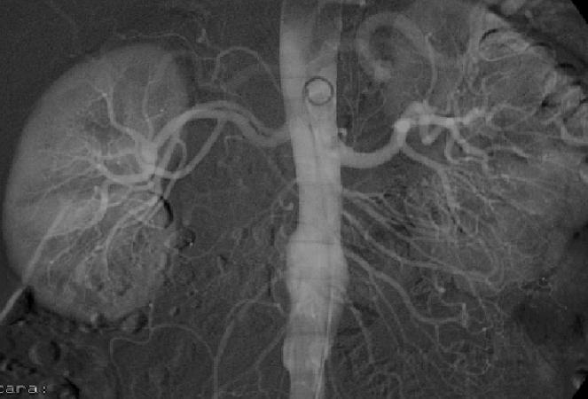 Aortograma abdominal.